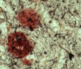 Brain enzyme is double whammy for Alzheimer's disease