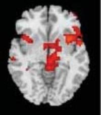 Brain hubs boil when hoarders face pitching their own stuff