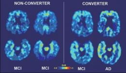 Brain-imaging technique predicts who will suffer cognitive decline over time
