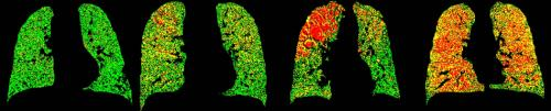 Breathe in, breathe out: New way of imaging lungs could improve COPD diagnosis and treatment