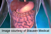 Burden of gastrointestinal disease in U.S. substantial