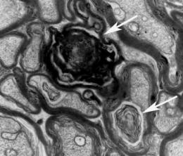 Cancer drug improves memory in mouse model of Alzheimer's disease