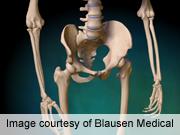 Coexistent lumbar disorders complicate hip arthroplasty
