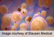 Congenital disease linked to adipocyte development