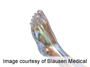 Correlates of diabetic foot complications identified