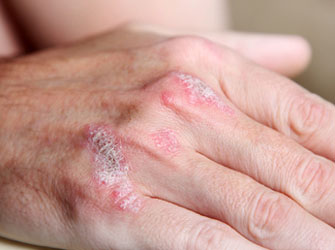 Dermatitis could be suppressed as it develops