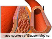 Early mediterranean diet benefits arteries in adulthood