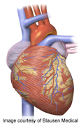 Early prophylactic tx beneficial for hypertrophic cardiomyopathy