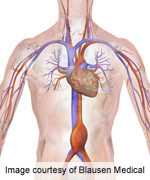 Endovascular, open aneurysm repair long-term survival akin