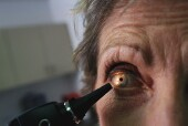 FDA warns about misleading advertising for some laser eye surgeries