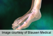 Forefoot joints don't improve 28-joint count measurement