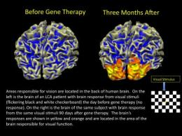 Gene therapy for inherited blindness succeeds in patients' other eye