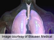 Glucose levels at admission predict death in pneumonia