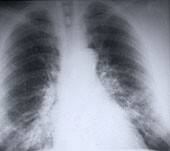 High VEGF signaling score tied to lung cancer prognosis
