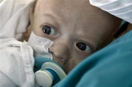 Hope for Romania baby born with stunted intestines (AP)