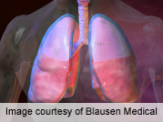 Human airways' 'Brush' mechanism gives clues to lung diseases
