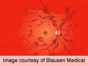 Hypertension ups retinopathy risk with HCV treatment