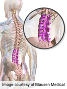 Incomplete recovery of lumbar discs two years after bed rest