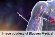 Insulin glargine's main metabolic effect as metabolite M1