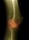 Keep moving to ease pain of knee arthritis: review