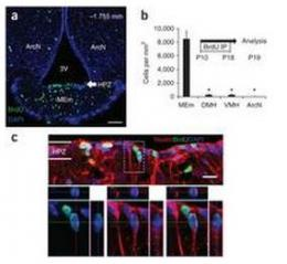 Increased production of neurons in hypothalamus found in mice fed high fat diets