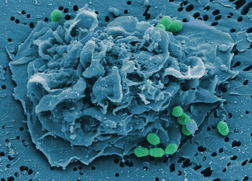Appetite suppressant for scavenger cells