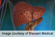Long-term type 2 diabetes ups pancreatic cancer mortality