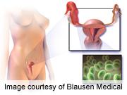 <i>M. genitalium</i> ups risk of pelvic inflammatory disease, cervicitis