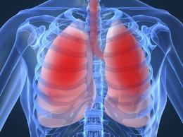 Lung disease sufferers falling 'under the radar'