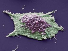 Detecting tumour cells individually