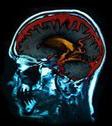 Men more prone to complications after brain, spine surgery
