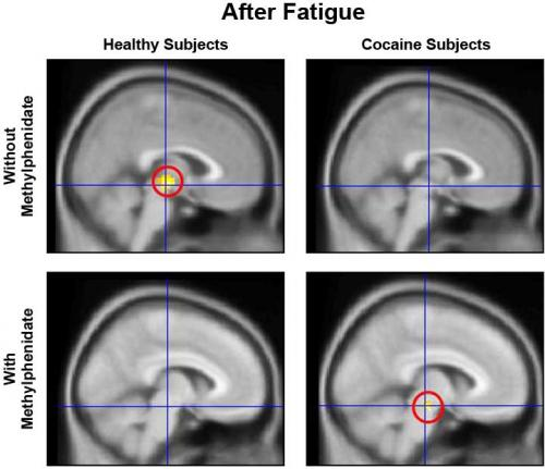 Mental Fatigue Impairs Brain Function, Motivation in Drug-Addicted Individuals