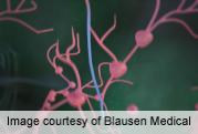 Metastatic melanoma responds to first-line interleukin-21