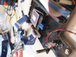 Microchip success for bionic eye