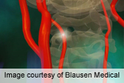 Mild cognitive decline in nearly half lacunar stroke patients