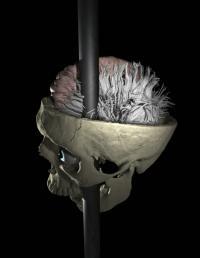 Modeling neurological damage of a traumatic brain injury survivor
