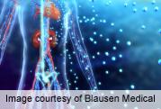 Multidisciplinary approach cuts symptoms of fibromyalgia