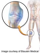 Myogenes identified for spondyloarthritis synovitis