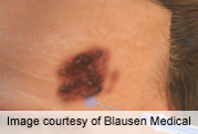 Negative pigment network able to distinguish melanoma