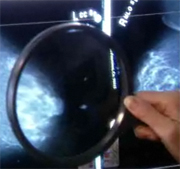 New drug regimens may slow advanced breast cancer