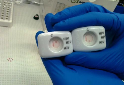 New rapid and point of care hepatitis C tests could be global game changers