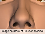 New surgical concept described for nasal tip recontouring