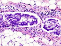 NIH researchers identify novel genes that may drive rare, aggressive form of uterine cancer