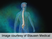 No link between whole-body vibration and spine pathology