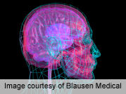 Nonsurgical method to measure brain pressure shows promise
