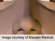Objective, subjective post-rhinoplasty breathing evaluated