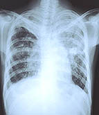 One in four tuberculosis cases due to recent transmission