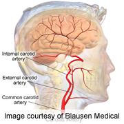 Pediatric kidney disease tied to abnormal carotid arteries