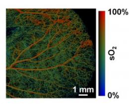 Photoacoustic tomography can 'see' in color and detail several inches beneath the skin
