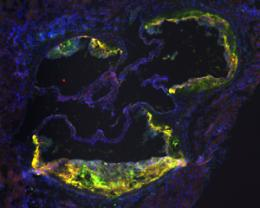 Problems in recycling cellular waste linked to clogged arteries